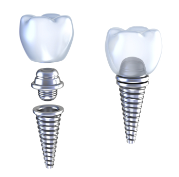 Exploded and Assembled diagrams of a dental implant, post and crown.